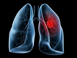 lung-cancer_iStock-250x187