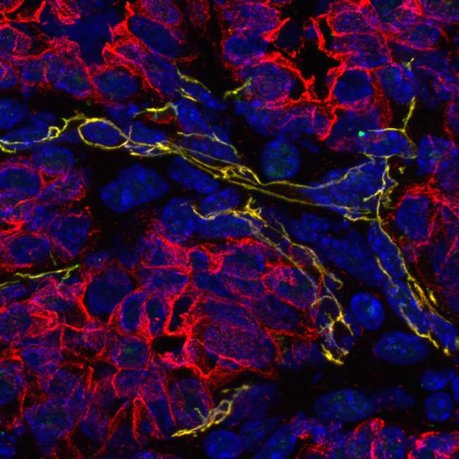 tumor tissue